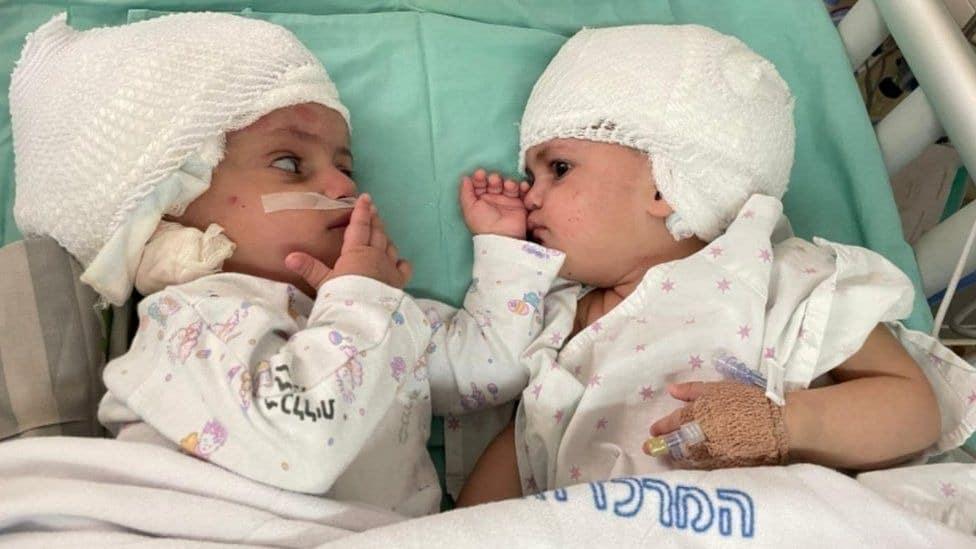 Israel Twin Girls